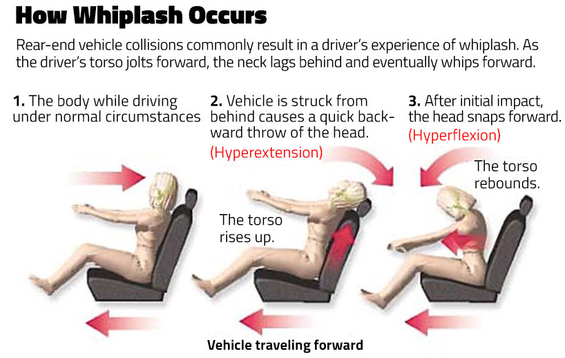 Image result for whiplash pain