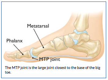 Anatomy of Turf Toe | BoulderCentre for Orthopedics