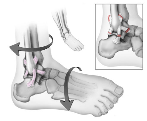 Anatomy of an ankle sprain | BoulderCentre for Orthopedics