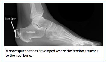 Achilles Tendinitis | BoulderCentre for Orthopedics & Spine