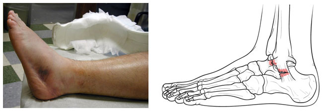 Anatomy Of An Ankle Sprain Bouldercentre For Orthopedics