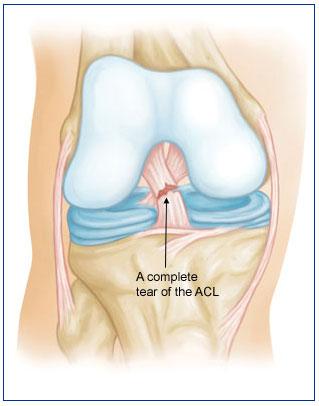 Knee Sprain aka Anterior Cruciate Ligament Sprain | BoulderCentre ...