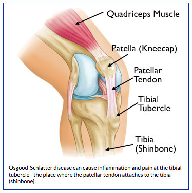 Risk Injury in Young Athletes | BoulderCentre for Orthopedics
