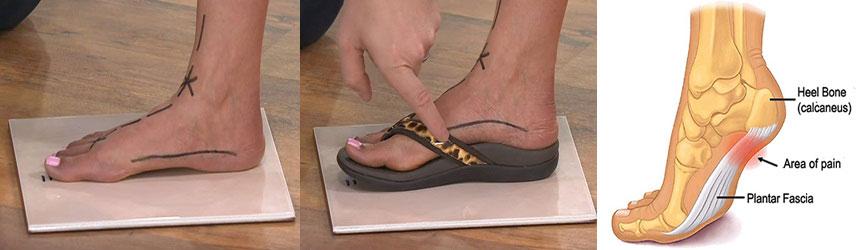 96bed0dd40031 Flip-Flops Foot Problems