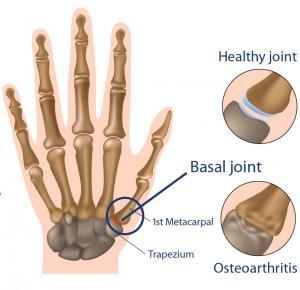 Cmc Arthritis Bouldercentre For Orthopedics Amp Spine