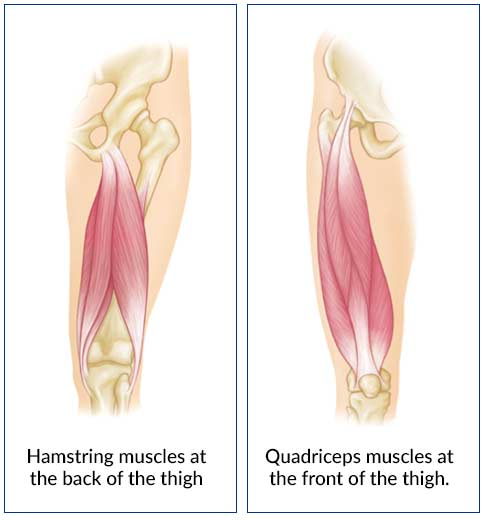 Thigh Muscle Strain Bouldercentre For Orthopedics